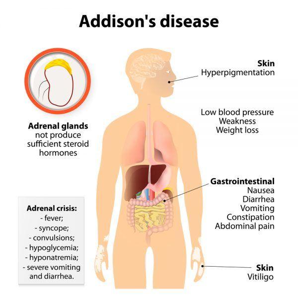 Ziekte van Addison anatomie